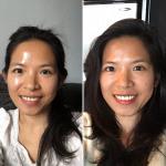 Soins dentaires au Canada – Combien ça coûte, Comment ça se passe
